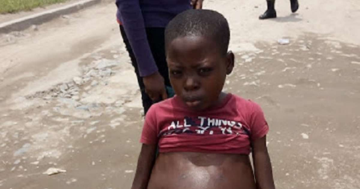 Exploited Sick Child Beggar